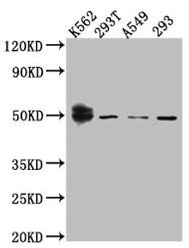 Anti-WT1 Antibody RACO0488