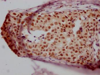 Anti-JUNB Antibody RACO0490