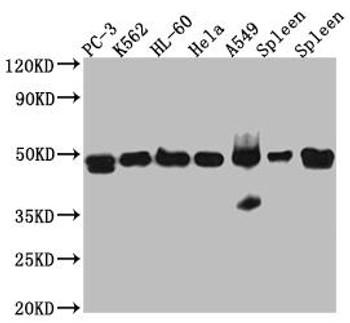 Anti-ACTR3 Antibody RACO0503