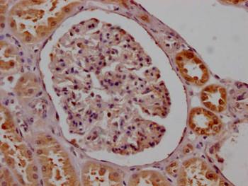 Anti-SMN1 Antibody RACO0508