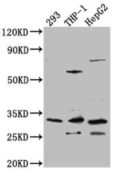 Anti-COMT Antibody RACO0511