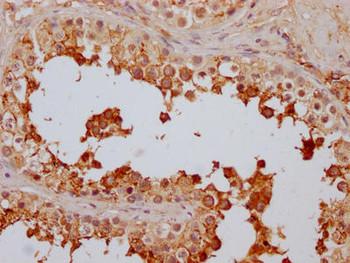 Anti-FAAH Antibody RACO0513
