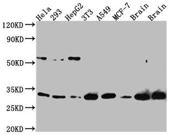 Anti-PGAM1 Antibody RACO0515