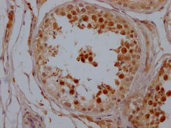Anti-SIRT1 Antibody RACO0519