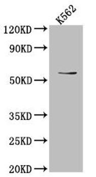 Anti-UAP1 Antibody RACO0536