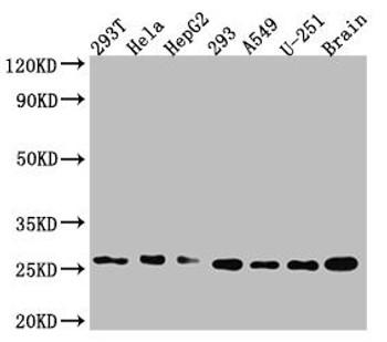 Anti-ID1 Antibody RACO0541