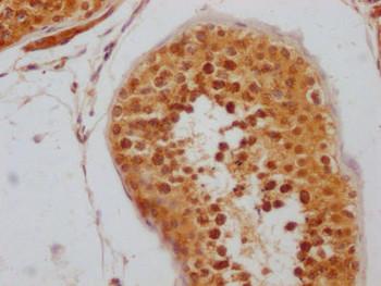 Anti-RNF20 Antibody RACO0546