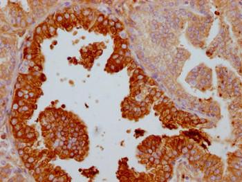 Anti-LTF Antibody RACO0563