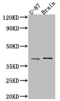 Anti-NGF Antibody RACO0568
