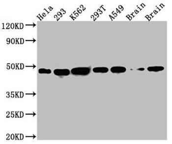 Anti-NUDC Antibody RACO0573