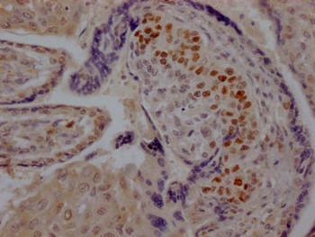Anti-SKP2 Antibody RACO0574
