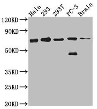 Anti-LTA4H Antibody RACO0577