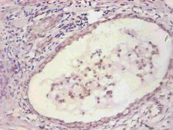 Anti-IL6 Antibody MACO0547