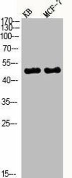 Phospho-MAPK8/MAPK9/MAPK10 T183/Y185 Antibody PACO06138