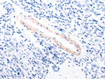 TPM1 Antibody PACO15153
