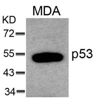 TP53 Ab-6 Antibody PACO21357