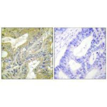 HEXB Antibody PACO23191