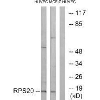 RPS20 Antibody PACO23360