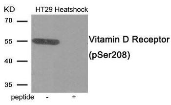 Phospho-VDR Ser208 Antibody PACO24077