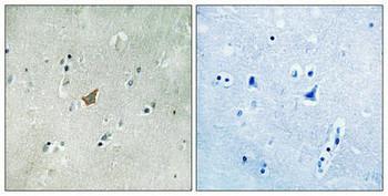 Phospho-EPHA3 Tyr779/833 Antibody PACO24109