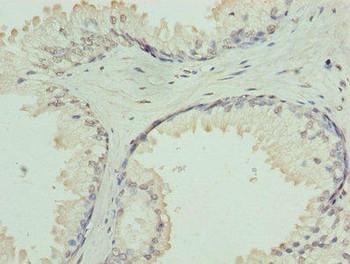 GNA14 Antibody PACO27061