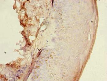 HEMK1 Antibody PACO27345