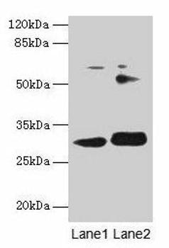 ITM2A Antibody PACO27709