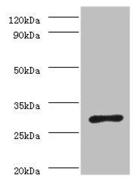 ureA Antibody PACO33440