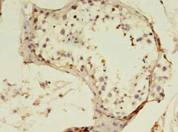 SART3 Antibody PACO35786
