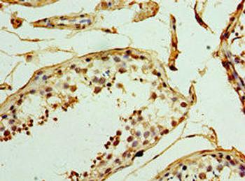 UCP1 Antibody PACO43648
