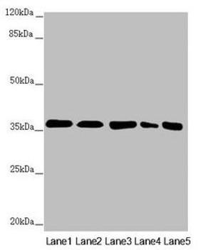 GNB2 Antibody PACO45136