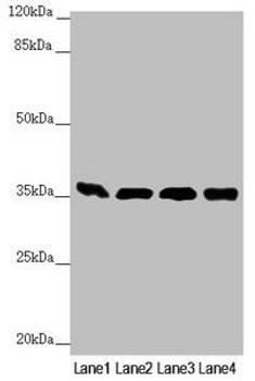 GNB2 Antibody PACO45137