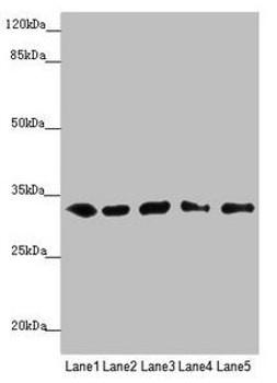 MMACHC Antibody PACO45563