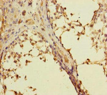 RAB27B Antibody PACO45615
