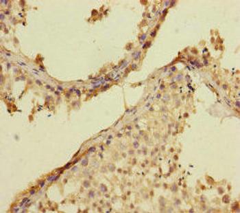 RAB27B Antibody PACO45616