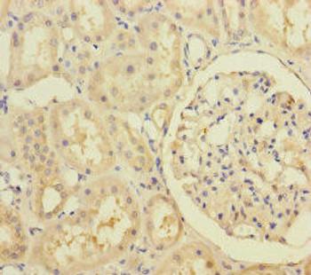 RIC8A Antibody PACO45622