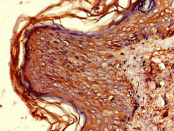 HLA-DQB1 Antibody PACO52094
