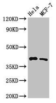 HLA-B Antibody PACO54122