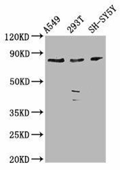 ZC3H14 Antibody PACO59145