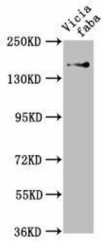GLU1 Antibody PACO62003