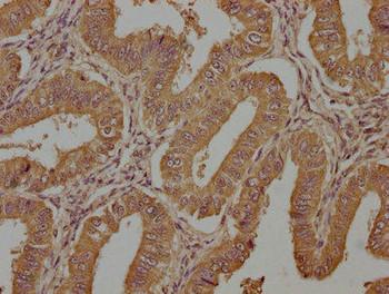 TAC1 Antibody PACO63387