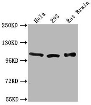 ACTN2 Antibody PACO64131