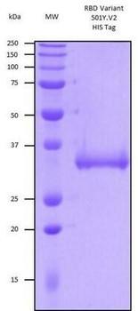 Recombinant Human SARS-CoV-2 Spike RBD Variant 501YV2, Lineage B.1.351, SA HEK