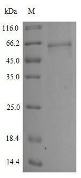 Recombinant Human Novel Coronavirus Spike glycoproteinS E484K Active