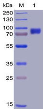 Human 2B4 Recombinant Protein mFc-His Tag HDPT0010