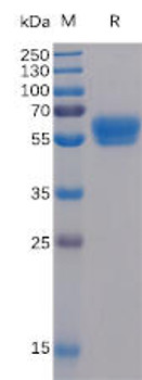 Human 4-1BB Ligand Recombinant Protein mFc-His Tag HDPT0045