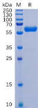 SARS-CoV-2 2019-nCoV S protein RBD, hFc Tag HDPT0097