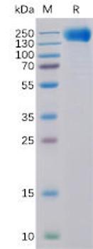 Human EGFR Recombinant Protein His Tag HDPT0118