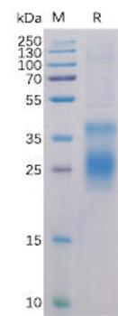 Human HVEM Recombinant Protein His Tag HDPT0129