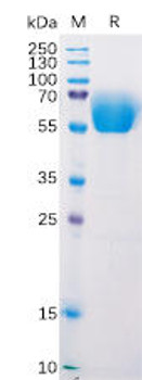 Mouse BTLA Recombinant Protein mFc Tag HDPT0175